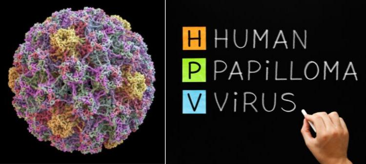human papilloma virus is a)